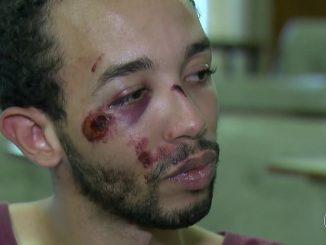 Andrei Apolônio dos Santos, agredido por um policial homofóbico, com o rosto machucado.