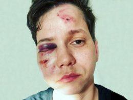 Karol Eller mostra rosto inchado e com hematomas após agressão